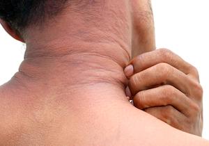 皮膚の常在菌移植でアトピー性皮膚炎改善!成人10人中6人、小児5人中4人が軽減