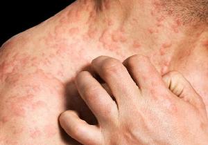 重症のアトピー性皮膚炎は心疾患の発症リスクを高める!