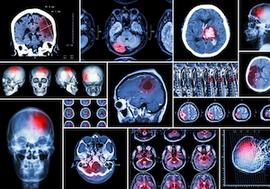 脳梗塞は「夏」に最も多い!重要なのは熱中症と同じく水分補給&「ACT-FAST」