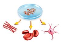 京大がiPS細胞によるパーキンソン病の再生医療の治験をスタート