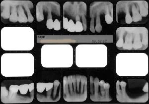 インプラント治療で失敗しないために良心的な歯科医を見分けるポイント
