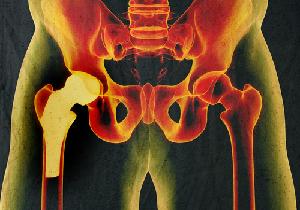 世界初!3Dプリンターで作る人工骨のイノベーション!欠損した骨が再生できる!