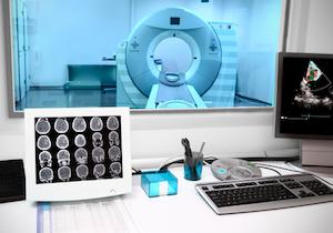世界では誰も知らない脳ドック もし脳動脈瘤が見つかったらどうしますか?
