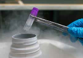 "iPS細胞研究への予算""偏重""という誤り…大学病院が再生医療の治療応用を妨げる"