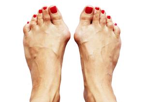 「外反母趾」は「歩き方」に原因が~患者4000人が「ゆりかご歩き」で改善!の画像1