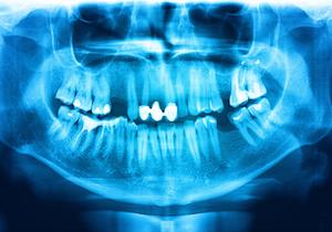 閉経後の「歯周病」は「発がんリスク」に~有病率は60歳代で約9割もの画像1