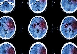 失業で「脳卒中」が増える? 再就職で発症率が約3倍、死亡リスクは4倍以上に!の画像1