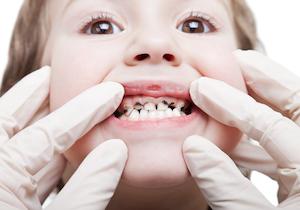 子どもの「虫歯」に貧困問題~「口腔崩壊」の児童がいる学校が35%も! の画像1