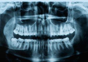 歯型で個人を特定! 東日本大震災でも使われた「法歯学」の鑑定力の画像1