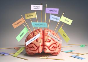 「てんかん」という病〜発作や症状のコントロールで運転も可能の画像1