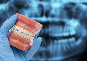 治療用顕微鏡による歯の神経治療(歯内療法)の3つの方法の画像1