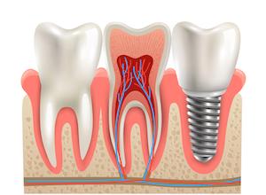 歯の神経の治療とは? 「歯内療法」や「根管治療」は痛みや腐敗を除去する重要な治療の画像1