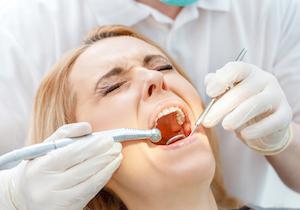 顕微鏡を使えば虫歯の治療も「痛み」が少ない!歯石除去の後に残る不快な症状も抑えられるの画像1