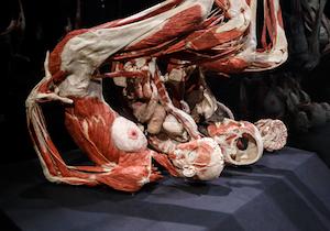 学術展示か?見せ物か?今も世界各国で開催される「人体の不思議展」の功罪を問う!の画像1