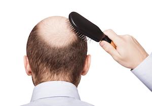 「男性型脱毛症(AGA)は5.6倍」「若白髪は5.3倍」も冠動脈疾患のリスクが高くなる!の画像1