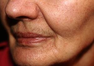 深い「ほうれい線」も改善する皮膚再生治療とは?濃縮した血小板に成長因子を加える「FGF添加PRP療法」の画像1