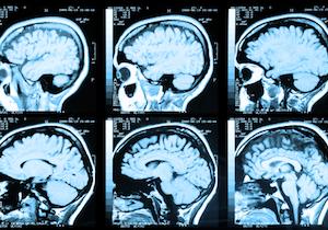 脳ドックで脳動脈瘤が見つかったらどうする 手術か経過観察かどちらが正しい?の画像1