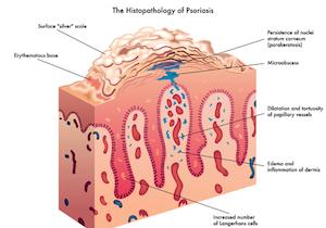 「乾癬(かんせん)」はメタボの男性が発症しやすい!その治療法は?バイオ製剤とは?(後編)の画像1