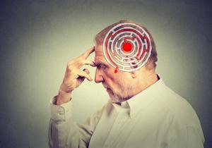 なぜアルツハイマー病の「新薬開発」は失敗するのか?注目の2種類の新薬の臨床試験が相次いで失敗の画像1