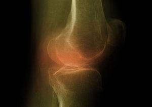 減量すればするほど「膝関節症」の痛みは軽減!20%以上減量すれば外科治療や薬物治療も不要の画像1
