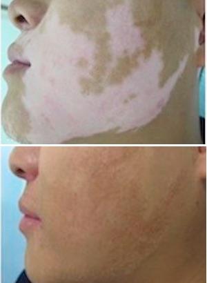 白斑(尋常性白斑)は8割以上が改善~最新の「光線療法」「ミニグラフト移植」の画像2