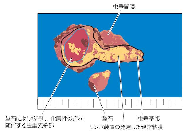 【閲覧注意】急性虫垂炎(盲腸炎)~「大便」が石になって詰まる!の画像3