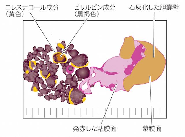 【閲覧注意】胆嚢炎のなれの果て? 胆石で満ちた陶器のような胆嚢の画像3
