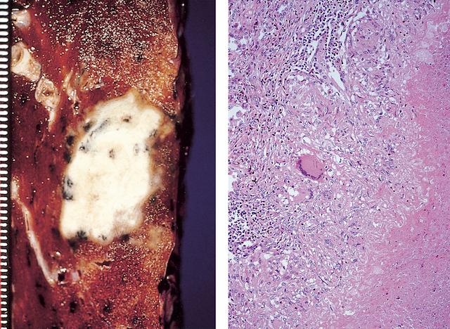 【閲覧注意】肺結核症の画像2