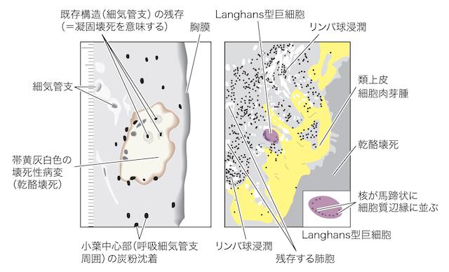 【閲覧注意】肺結核症の画像3