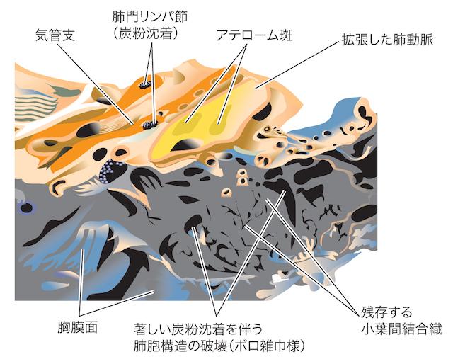 haikisyu002.jpg