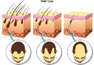 AGA治療はコスパが重要~薄毛の悩みを抱える人は1200万人 の画像1