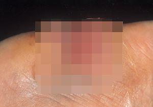 【閲覧注意】扁平上皮がん〜「類表皮がん」とも呼ばれる皮膚に生じる代表的ながんの一種の画像1