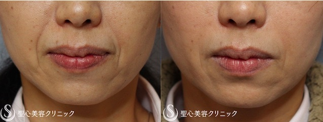 深い「ほうれい線」も改善する皮膚再生治療とは?濃縮した血小板に成長因子を加える「FGF添加PRP療法」の画像2