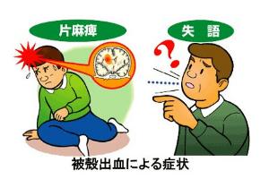 脳出血、なぜ「冬の月曜朝」に発症多い?意識障害や言語障害、危篤状態に陥るケースもの画像2