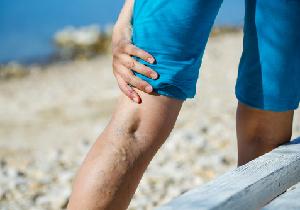 下肢静脈瘤は「血管の老化現象」!静脈をアンチエイジングする「足し算」の食事法とは?の画像1