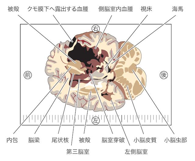 【閲覧注意】高血圧がもたらす脳出血~血圧コントロールで防ぐの画像3