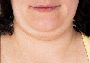 注射で「二重あご」が解消できる新薬が誕生! 技術開発が進む美容整形の未来とは?の画像1