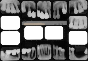 インプラント治療で失敗しないために良心的な歯科医を見分けるポイントの画像1