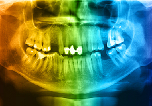 歯周病のあなたはすでに糖尿病前症・糖尿病になっている可能性が高い!の画像1