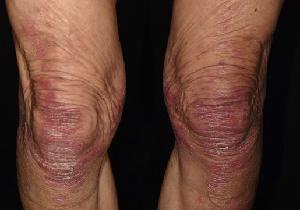 道端アンジェリカさんがカミングアウトした「乾癬(かんせん)」とはどんな病気?(前編)の画像2