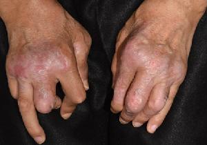 道端アンジェリカさんがカミングアウトした「乾癬(かんせん)」とはどんな病気?(前編)の画像3