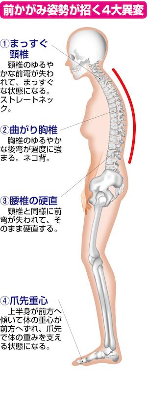 「脊柱管狭窄症」の原因はPC・スマホ、車の運転!? ストレートネックから難病に!の画像2