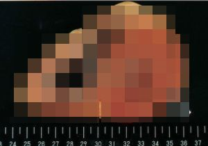 【閲覧注意】若者も少なくない「心筋梗塞」で突然死~の画像1